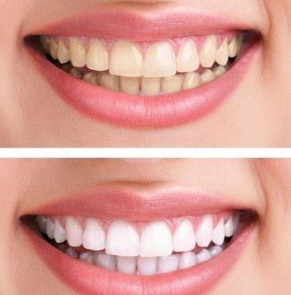 (Internacional Shopping) 2 sessões de Clareamento Dental a Laser por R$ 555,00